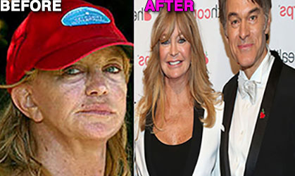 """""""Getting older is rough for an actress. I feel like a new woman! Thanks Dr. OZ!"""""""