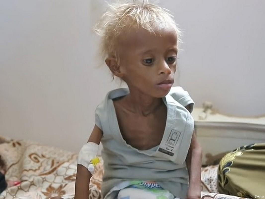400,000 starving Yemen children face risk of death