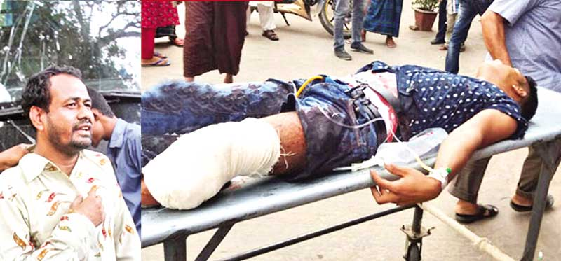 Rasel Sarker, lost his left leg as a speedy Green Line bus ran over him