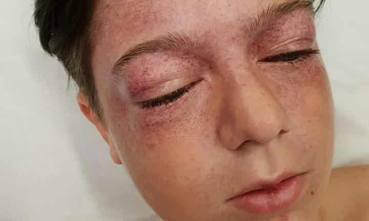 Boy receives head injuries after copying YouTube stunt