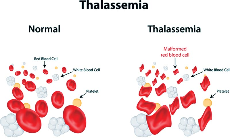 Rational approach to a Thalassemia patient