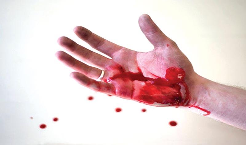Vitamin-K deficiency causes excessive bleeding