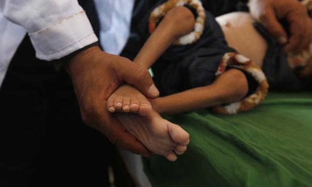 A Yemeni doctor treats a malnourished child in hospital. Photograph: Yahya Arhab/EPA