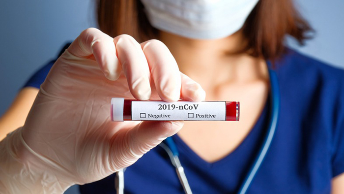 China's top virologist warns Covid-19 is just 'tip of the iceberg'