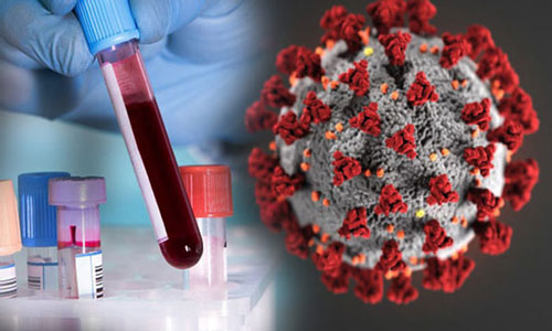 27 more infected with coronavirus in Laxmipur