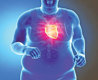 Exercise does not undo ill effects of being fat on heart health: Report